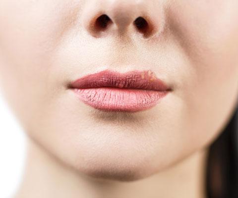 Герпес на губах: как лечить