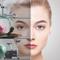 Лазерная шлифовка лица: процедура Finepeel, отзыв