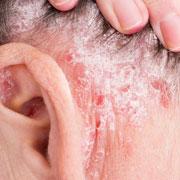 Анна Кутаркина: 'А это заразно?' 10 мифов о лечении псориаза у детей и взрослых