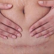 Как делают кесарево сечение и как заживает шов