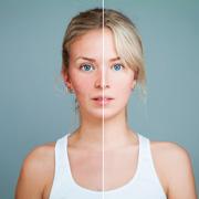 Офелия Легкая: Купероз: как убрать сосуды на лице