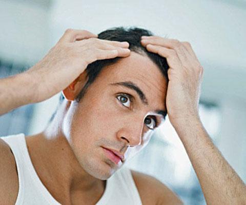 Как сохранить волосы от выпадения у мужчин — Волосы