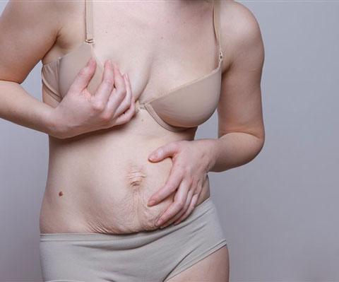 Как подтянуть кожу живота после родов. Обвисший живот после родов
