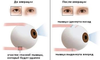 Капли для глаз для коррекции зрения