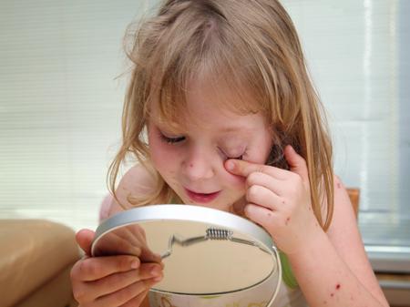 Сыпь у ребенка: что это? Аллергия, инфекция или укусы насекомых?