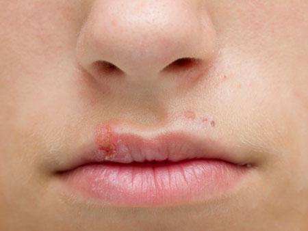 Герпес: лечение простуды на губах у ребенка