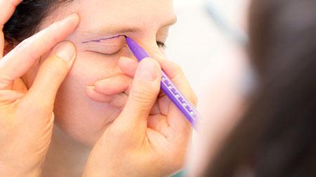 Как вернуть молодость глазам? Блефаропластика: способы коррекции век