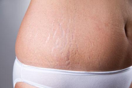Растяжки после родов