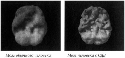 Работа мозга у детей с СДВГ