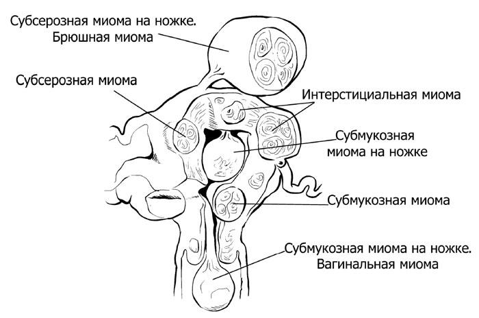Как расположены узлы миомы матки