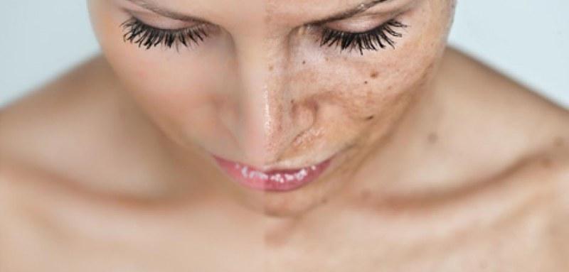 Как быстро удалить пигментные пятна на лице