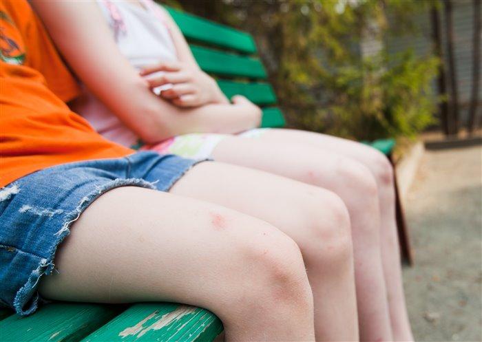 Средства от гематом для детей