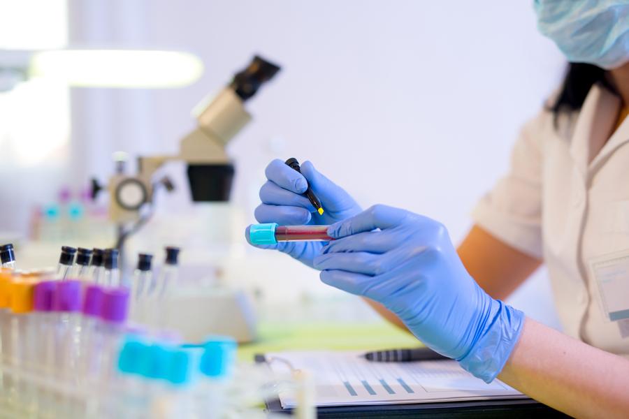 Анализ крови насахар: норма ипреддиабет