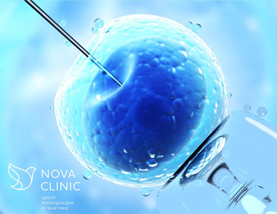 Способы лечения антиспермальных антител у м