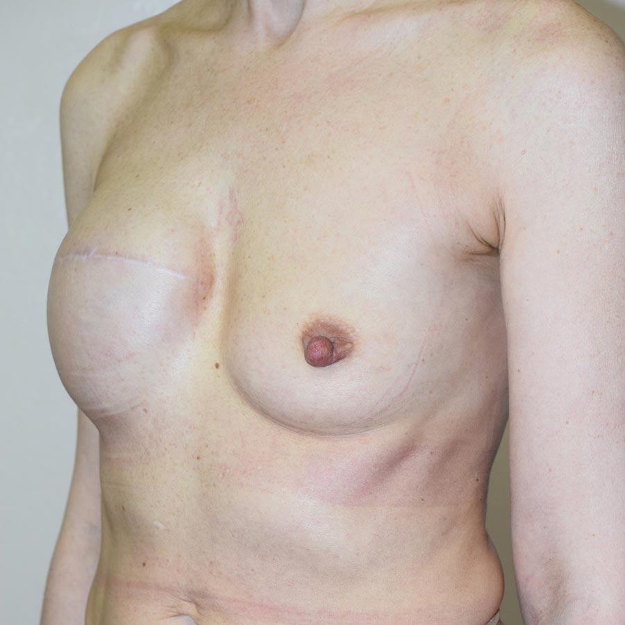 Фото после первой неудачной реконструкции груди