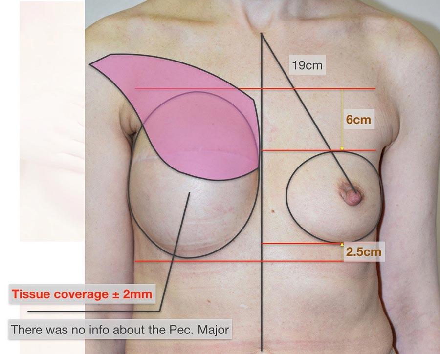 Нафото после первой реконструкции груди видно, как несимметричны молочные железы