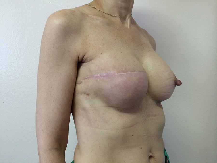 Через месяц после второй реконструкции груди