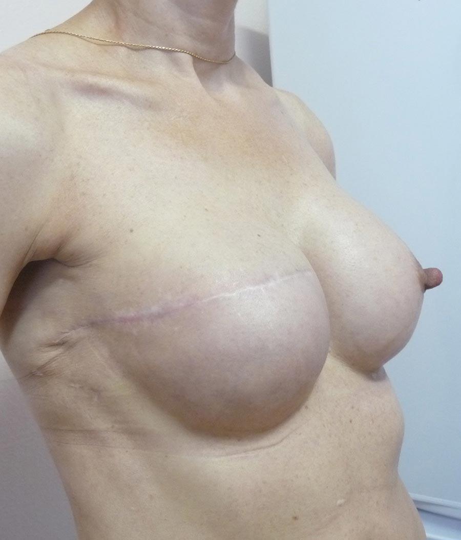 Через полгода после второй реконструкции груди