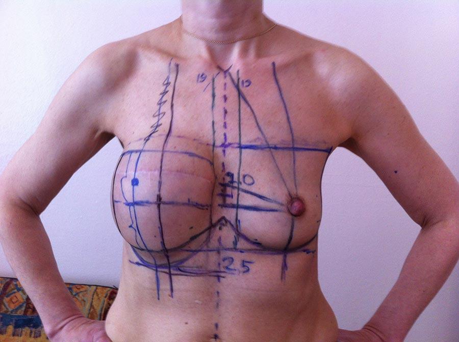 Такую разметку делают перед операцией пореконструкции груди
