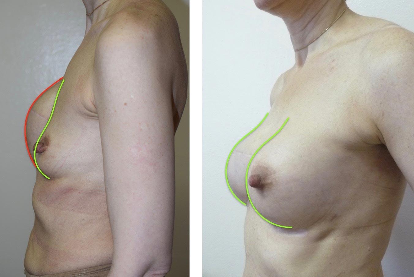 Фото доипосле второй маммопластики