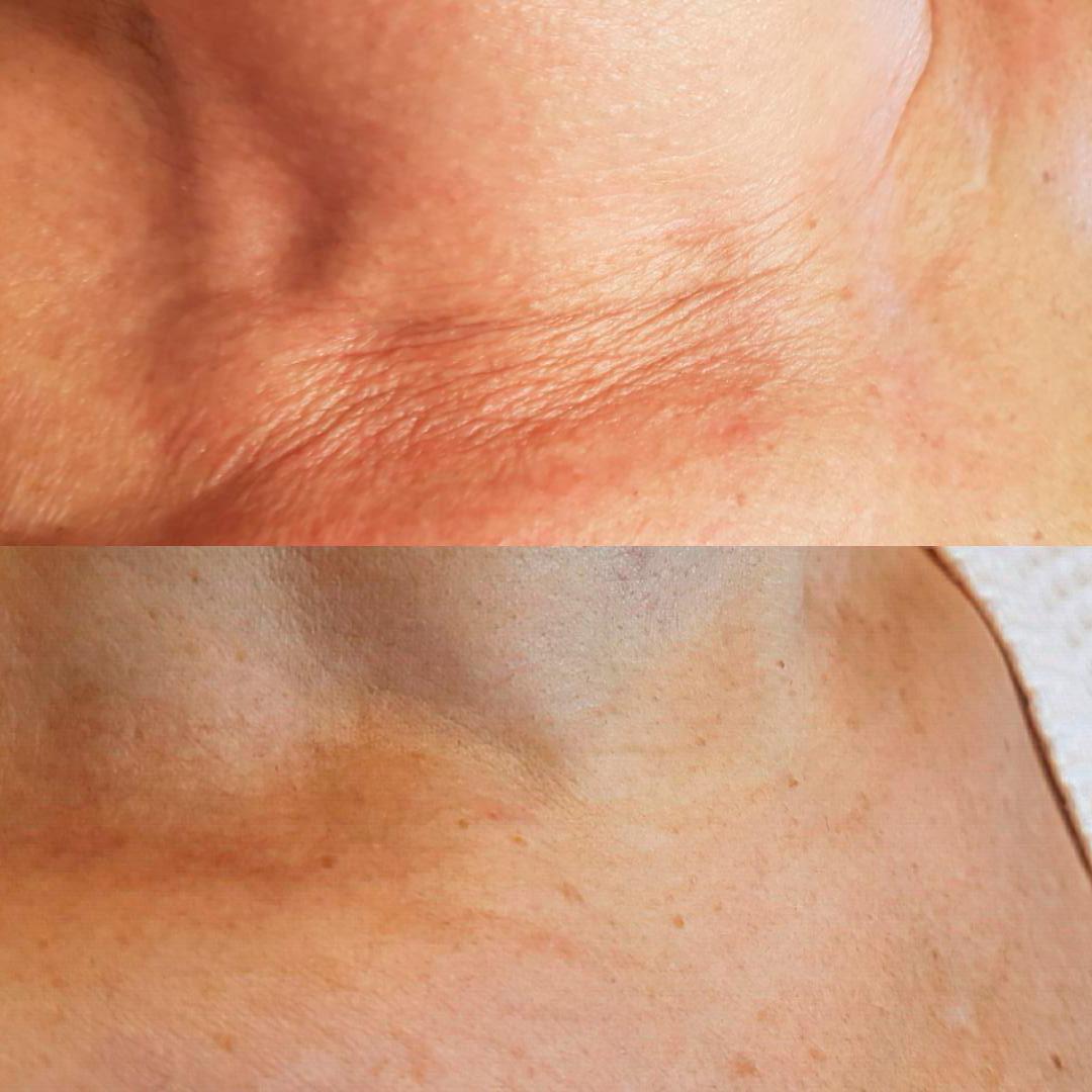Как избавиться отморщин нашее (через 2месяца после процедуры, женщина 50+)