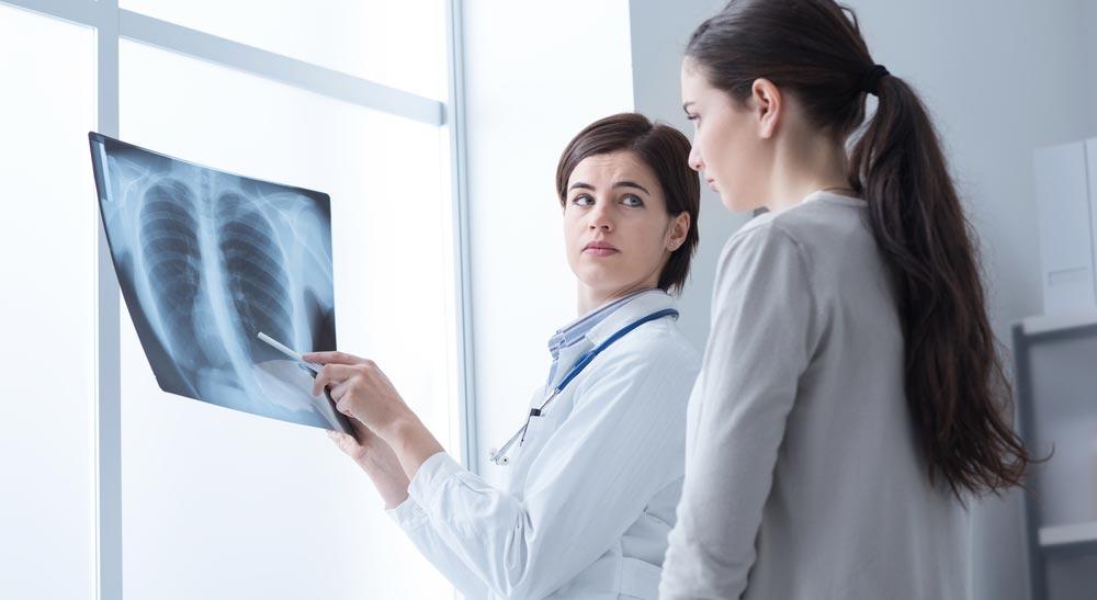 Надо ли делать рентген при пневмонии