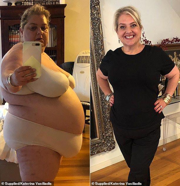 Минус 60 кг за 9 месяцев с помощью правильного питания. Фото до и после похудения.  Борьба с ожирением - реальная история похудения