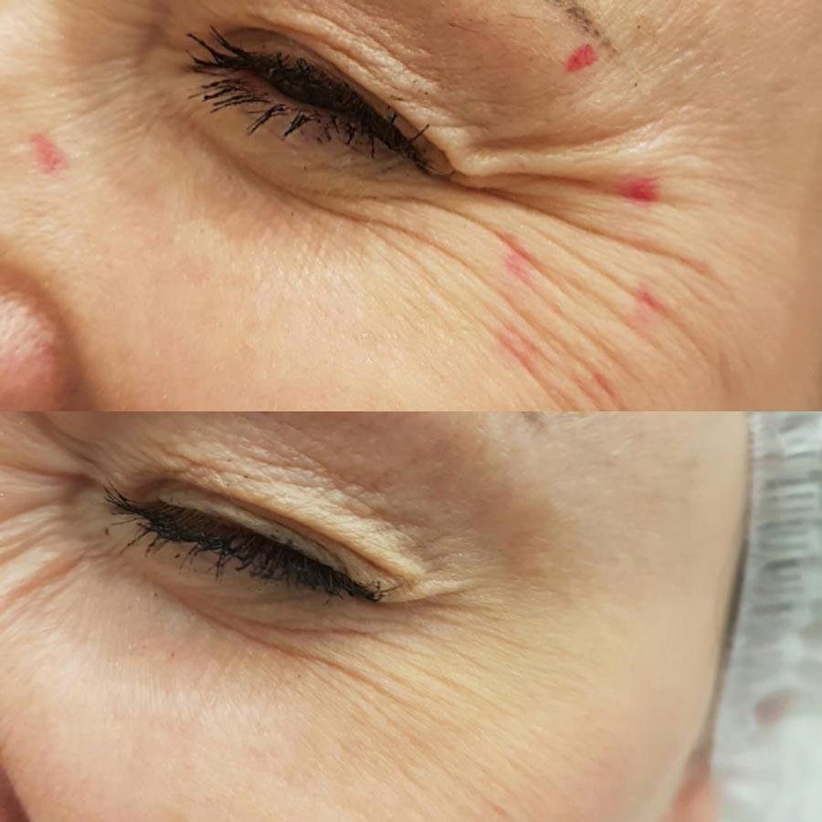Ботулинотерапия, фото доипосле наобласть глаз
