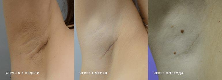 Динамика изменения рубца поистечении 3недель, 1и6месяцев после операции