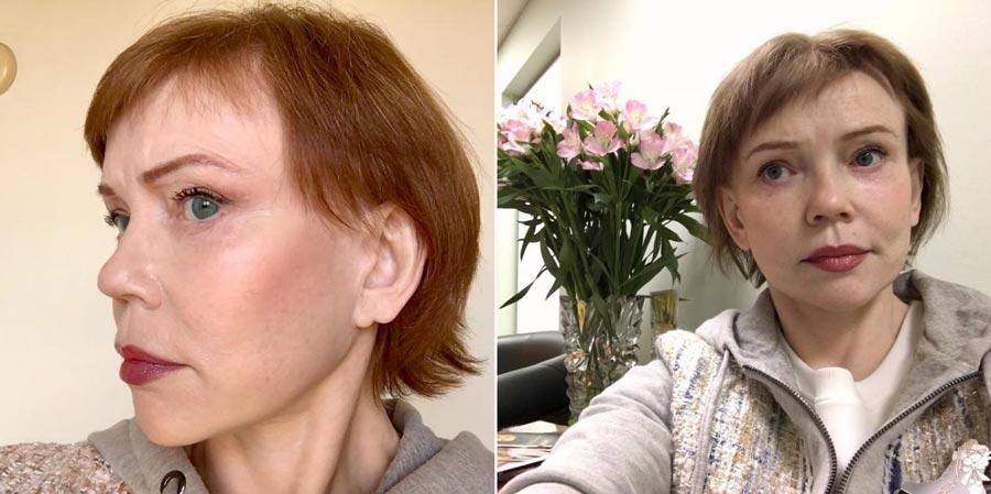 Светлана, фото после пластической операции