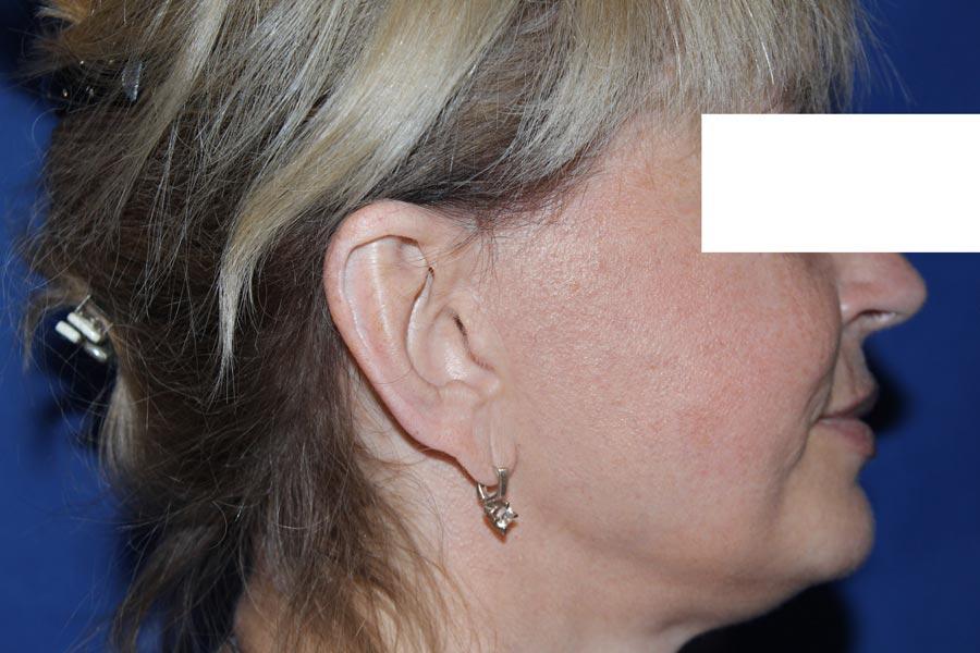 Фото через 6месяцев после подтяжки лица: вид рубца впредушной области