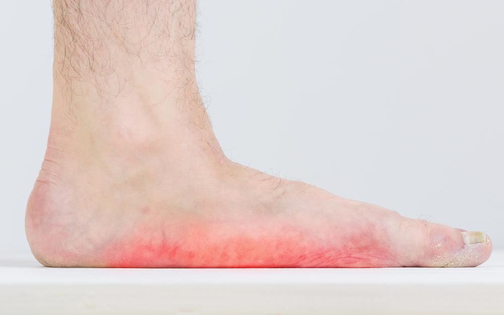 Упражнения для стоп при плоскостопии— взрослым