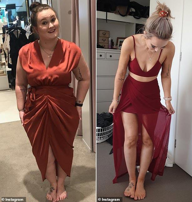 'Я боялась, что умру от сердечного приступа': история похудения на 62 килограмма.  Рукавная гастропластика при ожирении