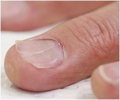 Ложкообразные ногти