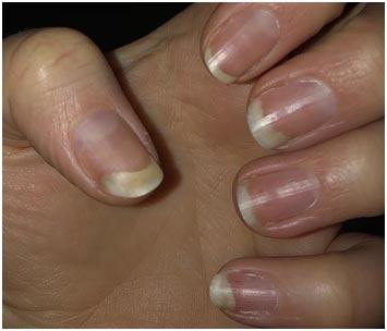 Отделение ногтевой пластины отложа