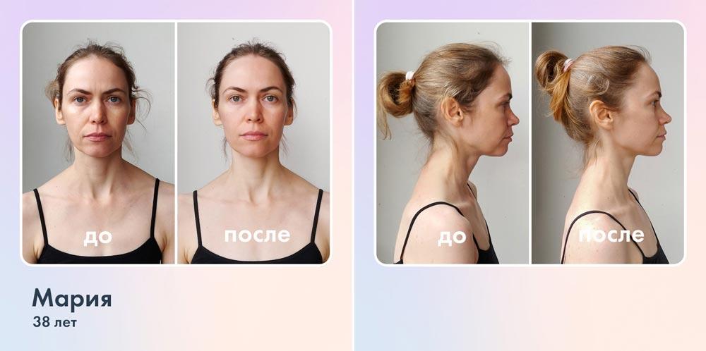 Как убрать вдовий горбик и подтянуть овал лица: 3 упражнения.  Как убрать брыли, упражнения