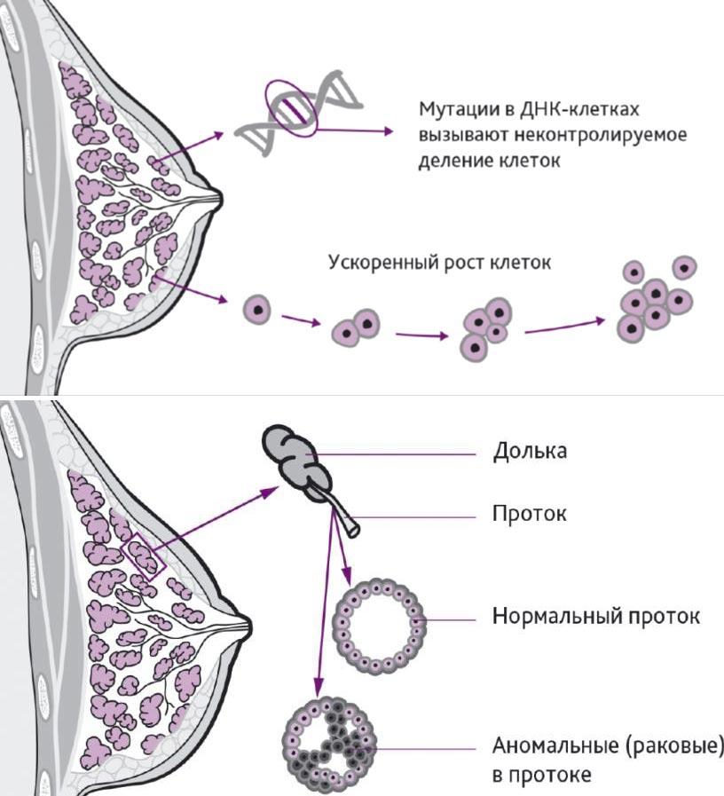 Самые первые признаки рака груди