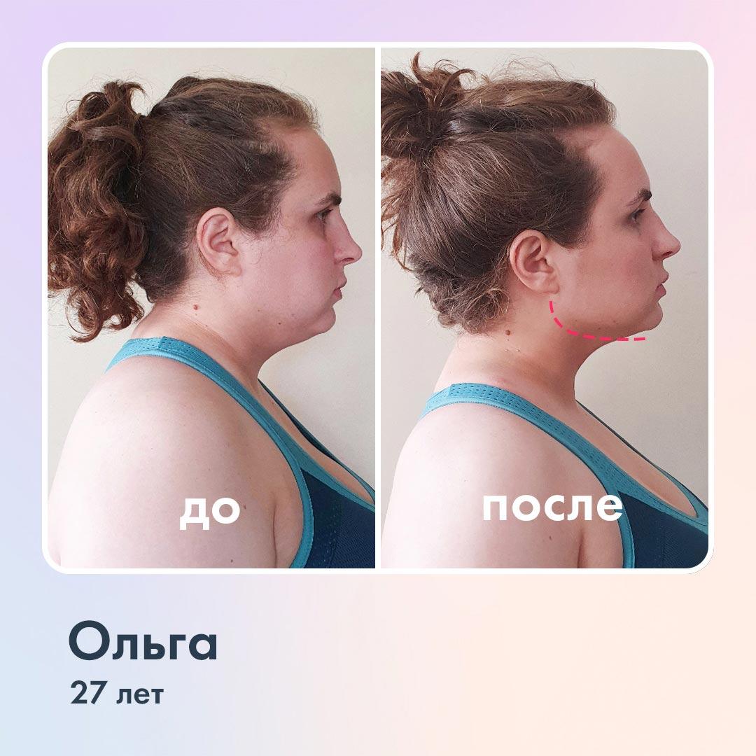 Упражнения для второго подбородка, фото доипосле