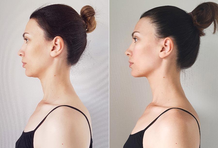 Удлинение шеи, фото оипосле. Елена, 35лет