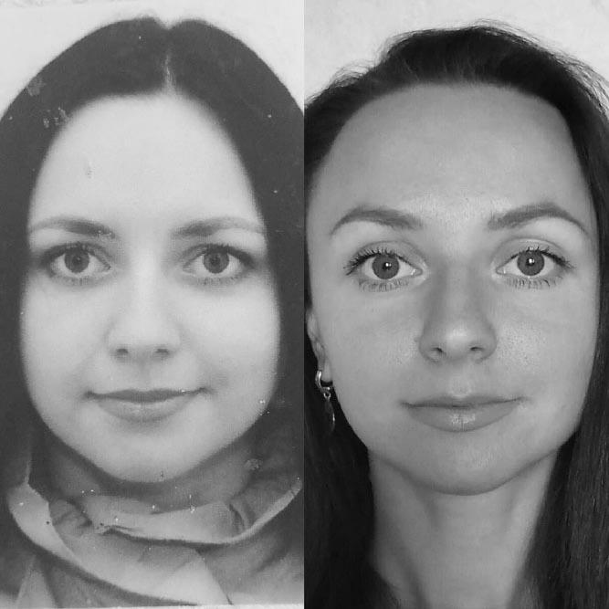 фото до и после лимфодренажа