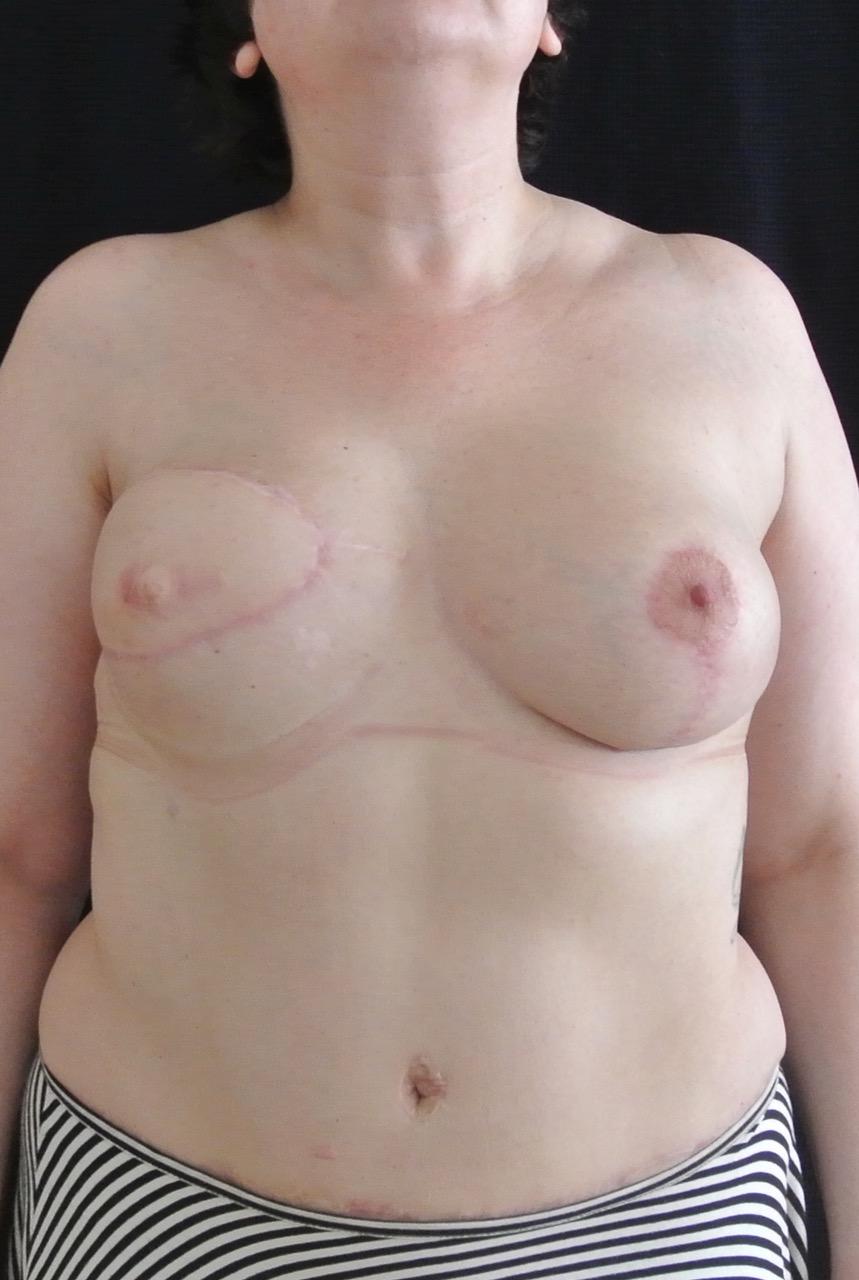 фото через месяц после реконструкции молочной железы