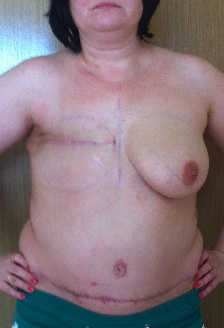 фото после мастэктомии и до реконструкции груди