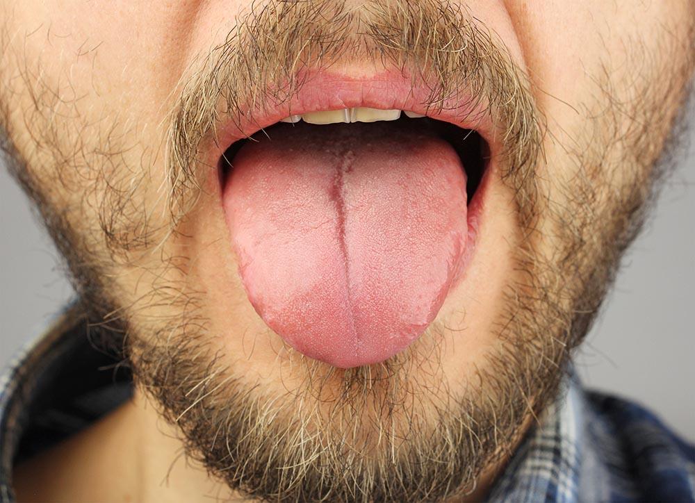 Что означает налёт на языке у взрослых. Как избавиться от налета на языке у взрослых