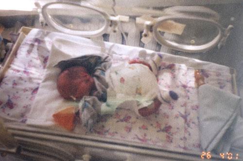 Маленькие пациенты. Они родились весом чуть больше килограмма